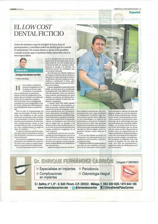 Implantes Malaga